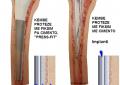Osteoartriti, sëmundja e nyjeve që prek kërcin