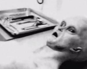 E rrallë/ Autopsia e parë e një alieni