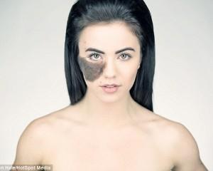 Balerina me nishan në fytyrë, refuzon ndërhyrjen kirurgjikale