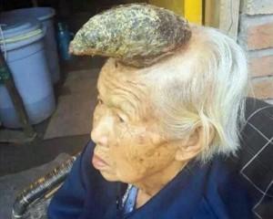 Kinë, zbulohet gruaja njëbrirëshe