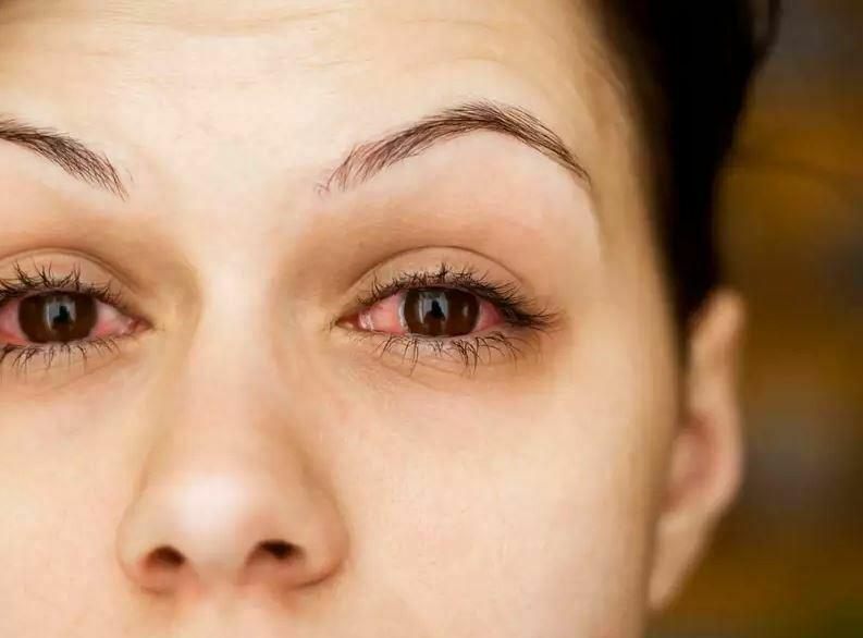 Infeksionet e syrit dhe këshilla për parandalimin e tyre